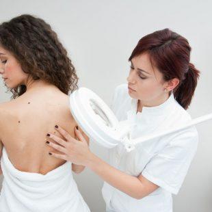 Liszaj płaski – jakie sa objawy, przyczyny i sposoby leczenia