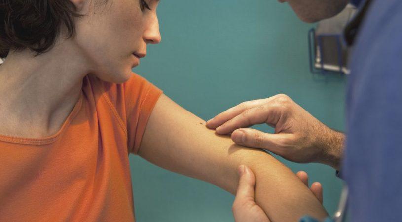 czyraki-brzydkie-zrzody-na-ciele-to-objawy-choroby