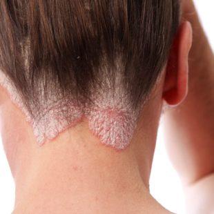 łuszczyca skóry głowy