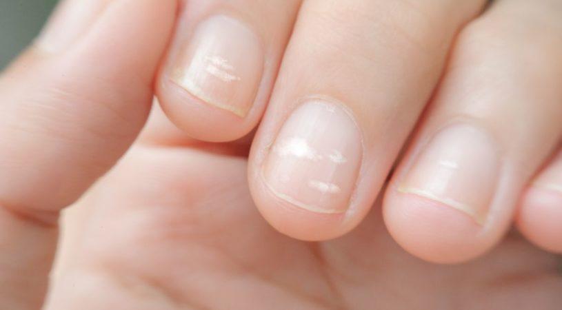 Co zrobić w przypadku zakażenia bakteryjnego paznokci